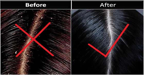 Here Is Some Realistic Information About Dandruff
